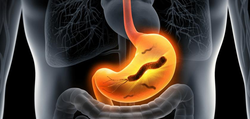 Les probiotiques contre Helicobacter pylori ?